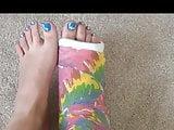 Toe Nail Art with cast