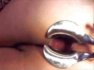 Webcam girl dildo and speculum in asshole by M.D.F