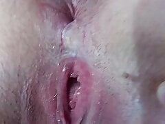 Exposing both loose wet holes for fans